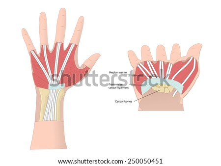 in carpal tunnel syndrome the ______ is compressed