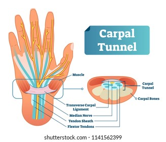 Carpal tunnel vector illustration scheme. Medical labeled diagram closeup with isolated muscle, transverse carpal ligament, median nerve, tendon sheath, flextor tendons and bones. Job and work illness