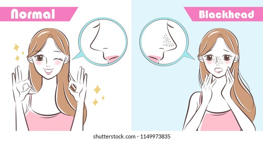 cartoon beauty woman with blackhead problem on nose before and after