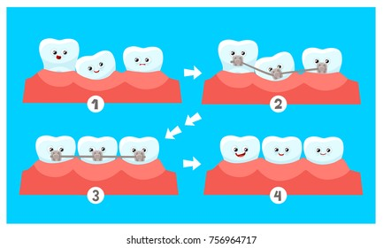 Cartoon Funny Teeth Without Dental Braces and After Correction With Brackets. Vector Illustration