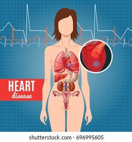 Cartoon Heart Disease Poster
