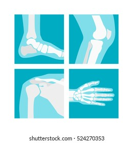 Cartoon Human Joints Set Health Care Medical Diagnostic X-ray. Flat Design Style Vector illustration