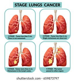 Cartoon internal human organ disease concept with four stages of lungs cancer. Vector illustration.