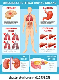 Cartoon medical care infographic concept with different diseases of internal human organs vector illustration