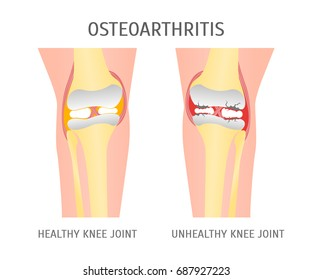 Cartoon Osteoarthritis Healthy and Unhealthy Knee Human Healthy Concept Flat Style Design. Vector illustration