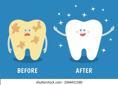 Cartoon tooth before and after cleaning or whitening or dental procedures. Dental illustration for kids. Comparison concept. Dirty and clean teeth. Flat style.