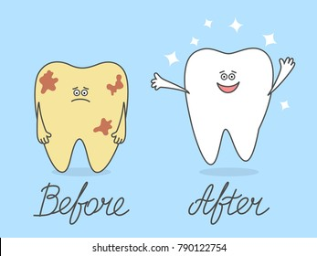 Cartoon tooth before and after cleaning or whitening. Dentistry illustration for kids. Comparison concept. Ill and healthy teeth. Dental procedures.