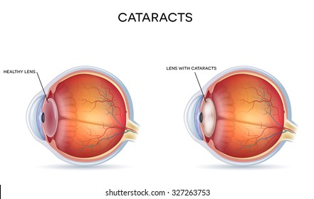 Cataracts and healthy eye detailed structure.