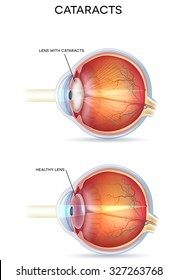 Cataracts and healthy eye structure.