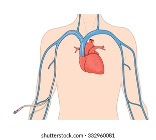 Catheter line (PICC) inserted into the superior vena cava from a peripheral vein in the arm.