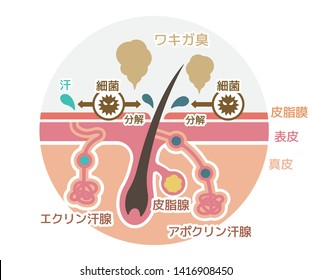 Cause of body odor vector flat illustration (round shape) / Japanese. translation: Body odor, Bacteria, Sweat, Sebum, Epidermis, Dermis, Eccrine sweat gland, Sebaceous gland, Apocrine sweat gland.