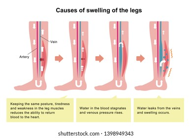 Cause of swelling(edema) of the legs. flat illustration (with explanation text).