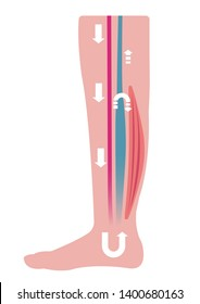 Cause of swelling(edema) of the legs. Water in the blood stagnates and venous pressure rises. flat illustration ( no text ).