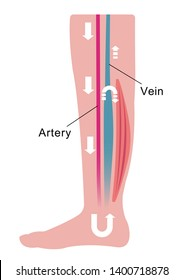 Cause of swelling(edema) of the legs. Water in the blood stagnates and venous pressure rises. flat illustration.