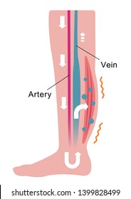 Cause of swelling(edema) of the legs. Water leaks from the veins and swelling occurs. flat illustration.