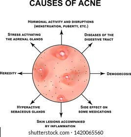 Causes of acne. Pustules, papules, comedones, blackheads, acne on the skin. Infographics. Vector illustration on isolated background.