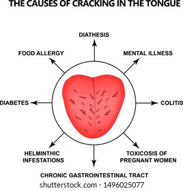 The causes of cracking in the tongue. Definition of a disease according to human tongue. Diagnostics by tongue. Tongue Vector illustration on isolated background.