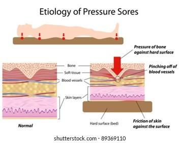 Causes of pressure sores