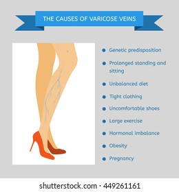 reasons for varicose veins