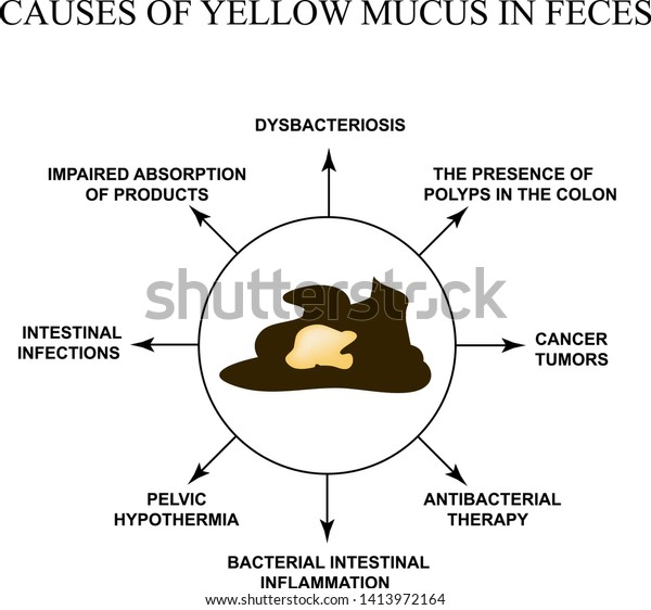 Causes Yellow Mucus Feces Diseases Gastrointestinal Stock Vector Royalty Free 1413972164