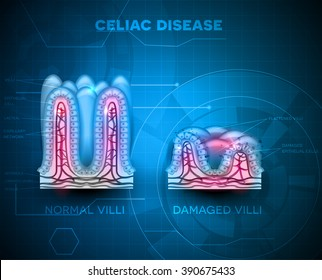 Celiac disease affected small intestine villi. Healthy and damaged villi on a blue technology background