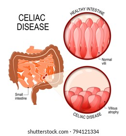 Celiac disease. small intestinal with normal villi, and villous atrophy. Diagram showing changes in intestinal. coeliac disease manifested by blunting of villi.