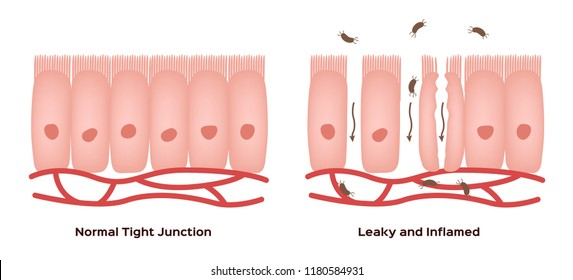 Celiac disease Small intestine lining damage. good and damaged villi . leaky gut progression