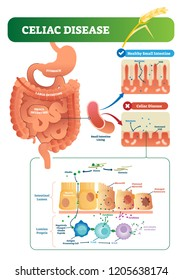 Celiac disease vector illustration. Labeled diagram with its structure. Autoimmune illness in stomach and intestine. Scheme with nutrients, healthy and destroyed villi.