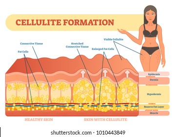 Cellulite formation vector illustration diagram, medical information scheme. Womans beauty and skicare.