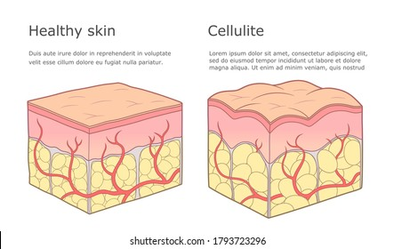 Cellulite and healthy skin structure vector illustration.