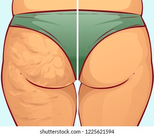 Cellulite on the buttocks, before-after. Vector illustration
