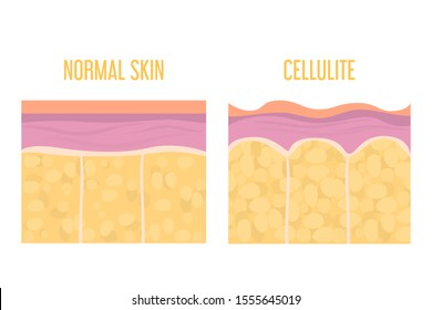 Cellulite skin and healthy skin anatomy. Fat tissue of human body vector isolated. Epidermis and dermis texture. Medical illustration of human cellulite skin.