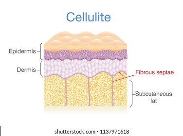 Cellulite skin layer of human. Illustration about health diagram.