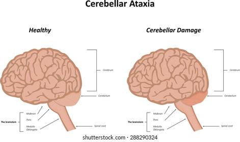 Cerebellar Ataxia