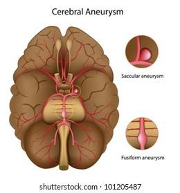 brain aneurysm svenska