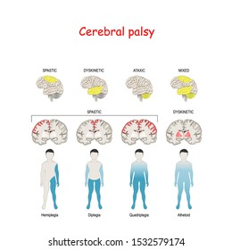 Cerebral palsy. Human brain with area Mixed, Ataxic, Dyskinetic, and Spastic palsy. Vector diagram for Medical, and educational use.  childhood problem