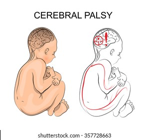 cerebral palsy. neurology