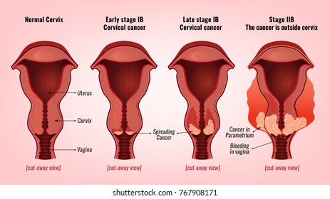 Cervix Images Stock Photos Vectors Shutterstock