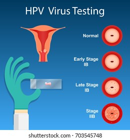 Cervical Cancer Screening Testing Examine Doctor Laboratory Checkup HPV Virus Prevent Staging Cancer by Vaginal Speculum