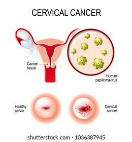 Cervical cancer. vector illustration of the uterus and cervix. Close-up of the Human papillomavirus infection (HPV) that causes diseases. female reproductive system