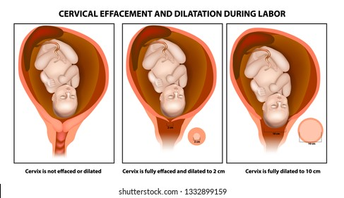 Cervical effacement and dilatation during labor