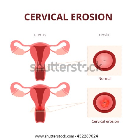 Cervical Erosion Schematic Illustration Uterus Cervix Stock Vector ...