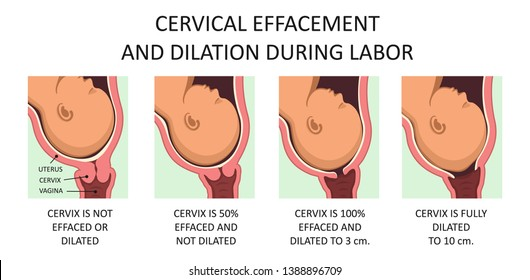 Cervix thinning and widening during labor