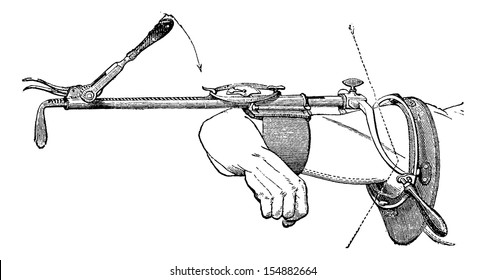 Charriere device to reduce dislocations of the shoulder recent or old, vintage engraved illustration. Usual Medicine Dictionary - Paul Labarthe - 1885.