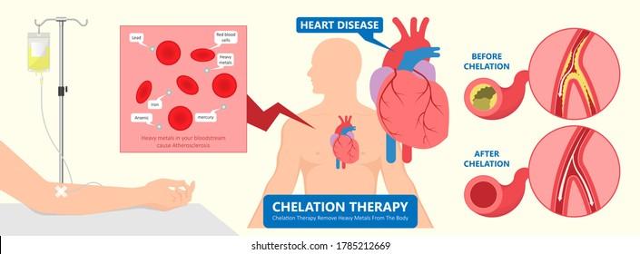 Chelation Therapy lead mercury iron arsenicethylenediaminetetraacetic acid bloodstream coronary artery disease metal poisoning autism Alzheimer's diabetes inject agent arteries