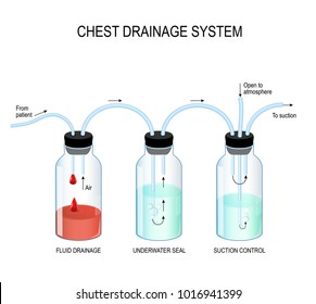 Chest drainage system. Fluid collected in the first chamber, and air discharged into the atmosphere from the third chamber.