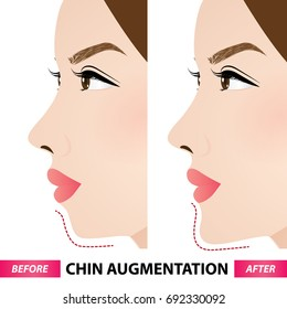 chin augmentation before and after vector illustration