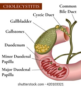 Cholecystitis. Inflammation of the gallbladder and bile ducts. Gallstones. Cholelithiasis. Calculous cholecystitis.