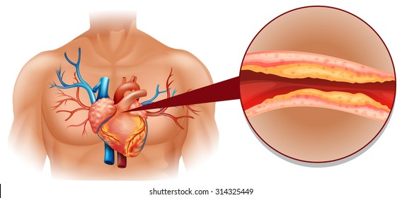 Cholesterol in human heart illustration