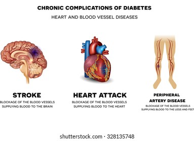 Chronic complications of Diabetes. Heart and blood vessel problems, Stroke, Heart attack and peripheral artery disease.